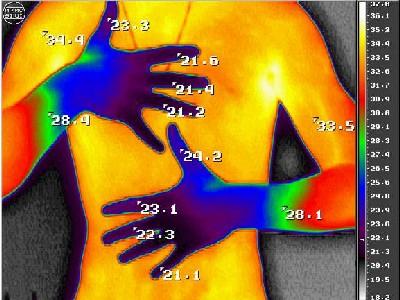 Термоампутация кистей при нейроциркуляторной дистонии